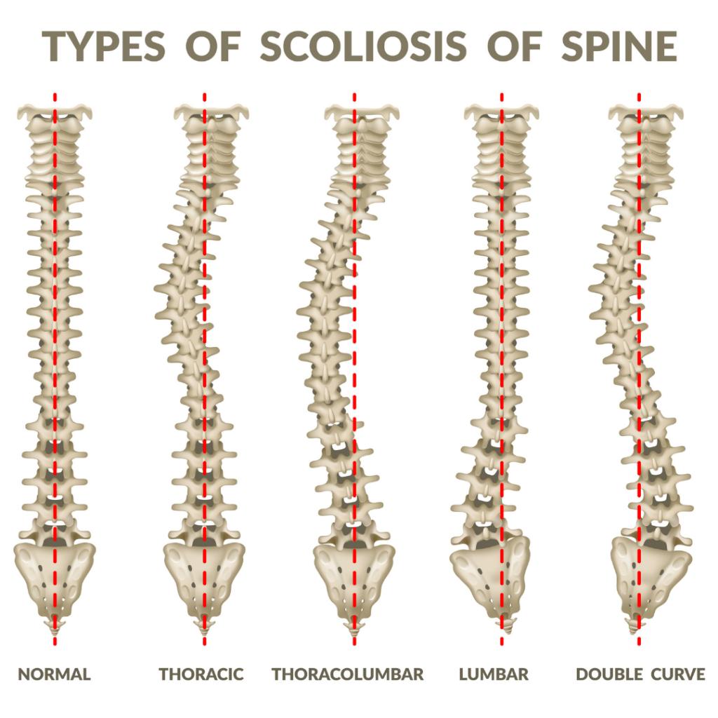 Spine surgery.